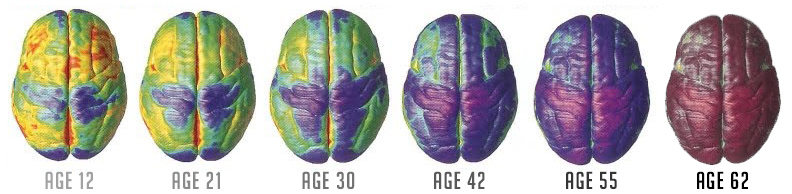 brain changes as we age